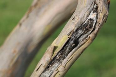 Келоиди – белезите, които не спират да нарастват