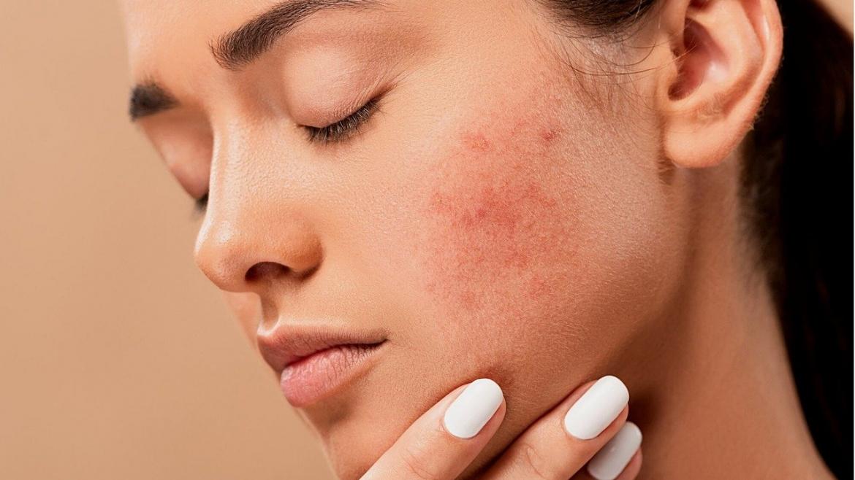 Значението на бензоил пероксида в лечението на акне